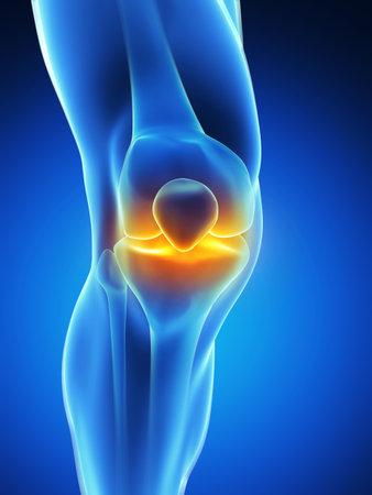 schmerzendes Knie Standard-Bild