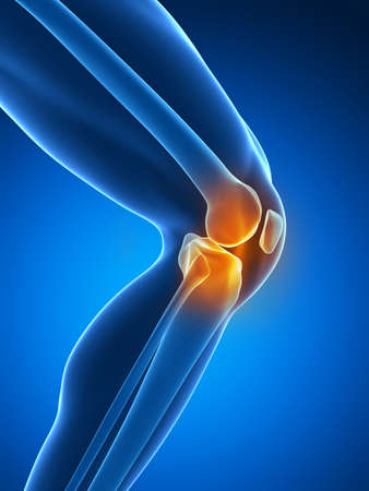 knee joint: painful knee Stock Photo