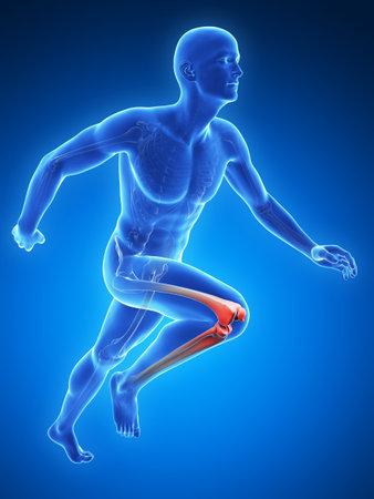 trauma: 3d rendered illustration - painful knee