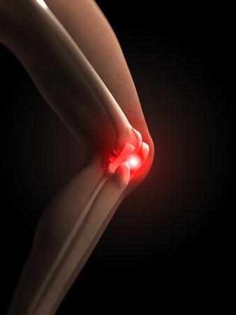 shin bone: painful knee Stock Photo