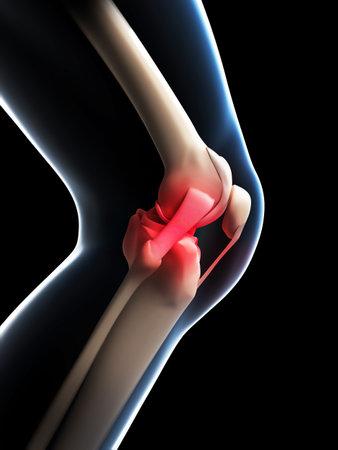 knee cap: painful knee Stock Photo