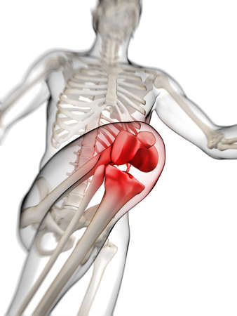 rheumatism: 3d rendered illustration - painful knee