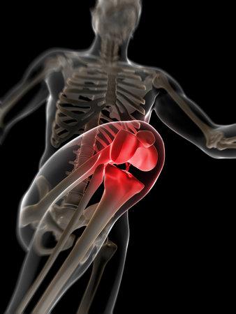 scheletro umano: Illustrazione di rendering 3D - ginocchio doloroso Archivio Fotografico