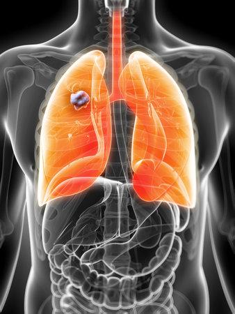 ulc�re: 3d illustration rendu du poumon chez les hommes - cancer Banque d'images
