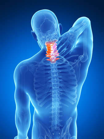 neck pain: 3d rendered illustration - painful neck
