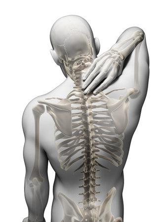 buchr�cken: 3D gerendert Illustration - schmerzenden Nacken Lizenzfreie Bilder