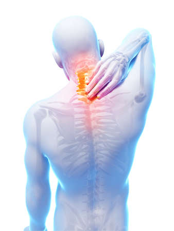 skeletal: 3d rendered illustration - painful neck