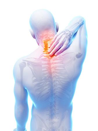 anatomy skeletal: 3d rendered illustration - painful neck
