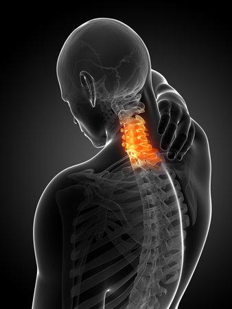 the neck: Illustrazione di rendering 3D - collo doloroso Archivio Fotografico