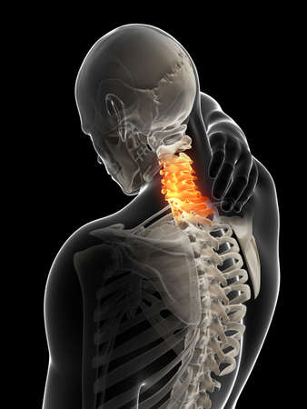 3d rendered illustration - painful neck illustration