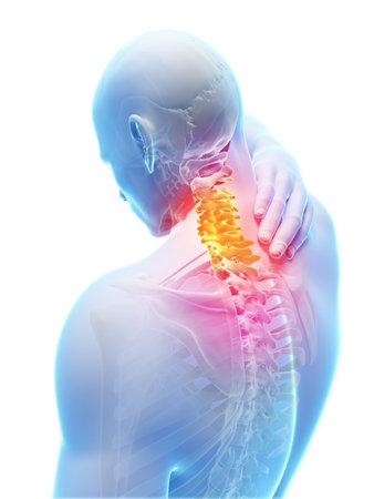 ağrı: 3d render illüstrasyon - ağrılı boyun