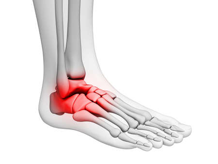 foot pain: 3d rendered illustration - painful ankle