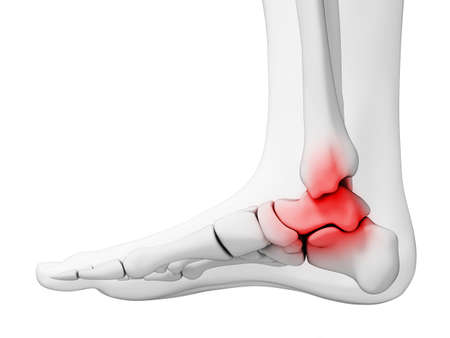 arthralgia: 3d rendered illustration - painful ankle