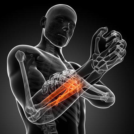 trauma: 3d rendered illustration - painful arm