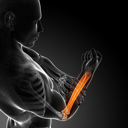 3d rendered illustration - painful arm