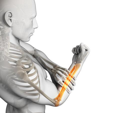 3d rendered illustration - painful arm illustration