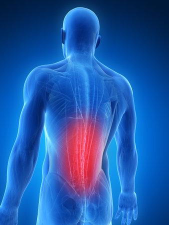 collo: Illustrazione di rendering 3D - muscoli dorsali dolorosi