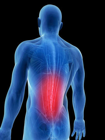 dolor de espalda: Ilustraci�n 3d rendered - dolores musculares de espalda