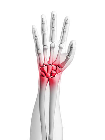 arthritic: 3d rendered illustration - painful wrist Stock Photo