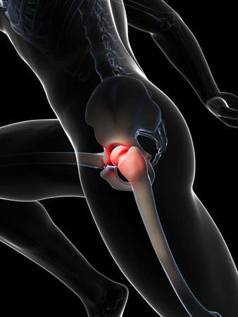 3d rendered illustration - painful hip joint Stock Illustration - 18071102
