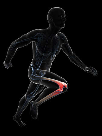 3d rendered illustration - painful runner joints illustration