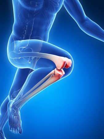 cartilage: 3d rendered illustration - painful knee