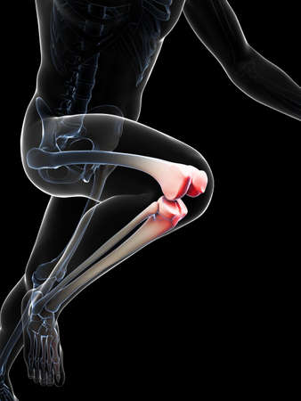 3d rendered illustration - painful knee illustration