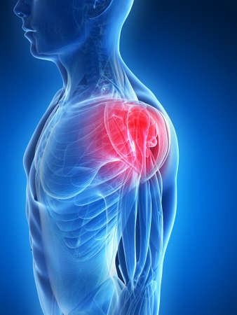 inflamed: 3d rendered illustration - painful shoulder muscles