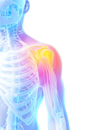 shoulders: 3d rendered illustration - painful shoulder Stock Photo