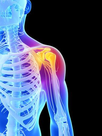 epaule douleur: 3d illustration de rendu - épaule douloureuse