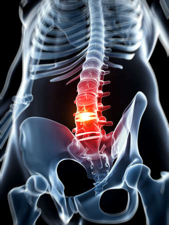 spinal cord: Ilustraci�n 3d rendered - hernia de disco
