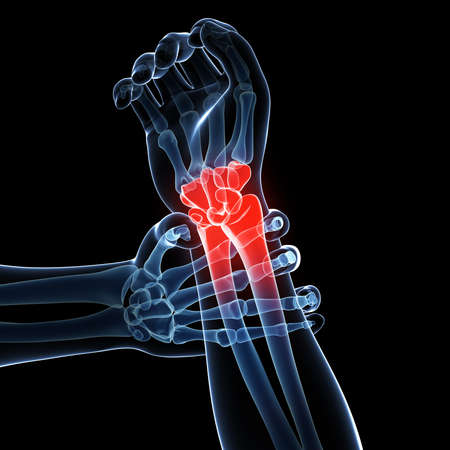 wrist joint: 3d rendered illustration - painful armwrist Stock Photo