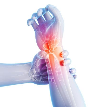 Illustrazione di rendering 3D - braccio dolorante / polso