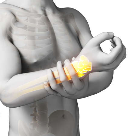 physical injury: 3d rendered illustration - painful armwrist Stock Photo