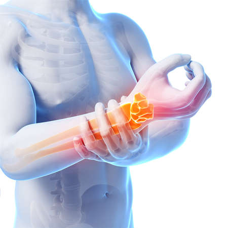 ulna: 3d rendered illustration - painful armwrist Stock Photo