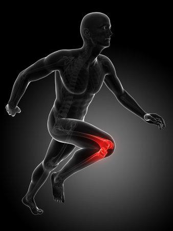 3d rendered illustration - painful knee Stock Illustration - 18070703