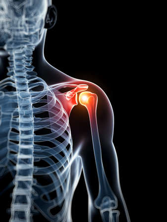 shoulder problem: 3d rendered illustration - painful shoulder Stock Photo