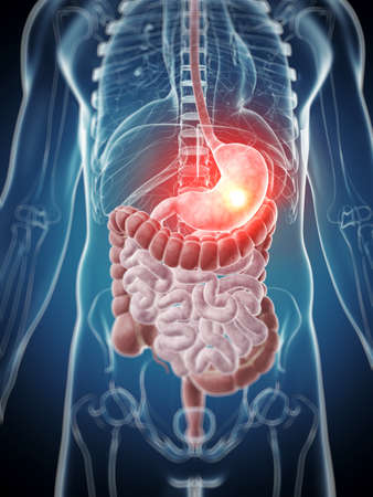 ulc�re: 3d illustration de rendu - estomac douloureux