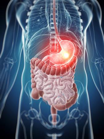 sistema digestivo: Ilustraci�n 3d rendered - est�mago doloroso
