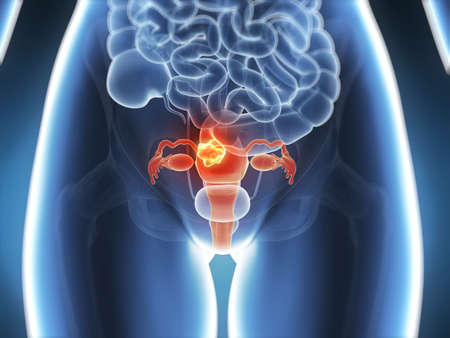 metastasis: 3d rendered illustration - uterus cancer Stock Photo