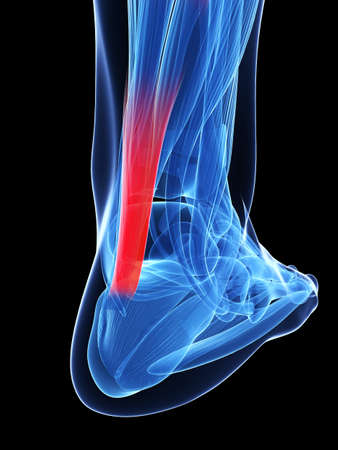 calf pain: 3d rendered illustration of the achilles tendon