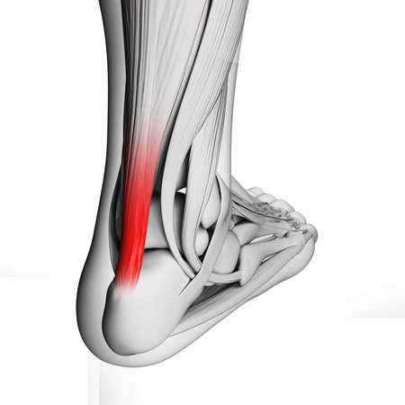 rupture: 3d rendered illustration of the achilles tendon