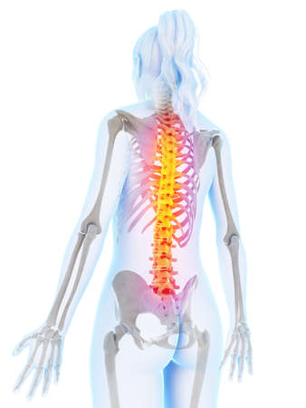 woman back pain: 3d rendered illustration of a painful back