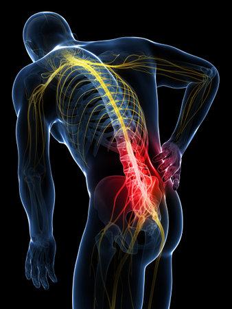 ağrı: 3d render illüstrasyon - sırt ağrısı erkek Stok Fotoğraf