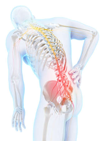 arthritis pain: 3d rendered illustration - backache male