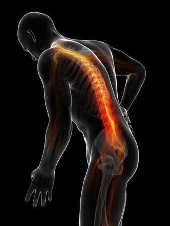 vertebra: 3d rendered illustration - backache male
