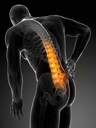 dolor de pecho: Ilustraci�n 3d rendered - macho dolor de espalda