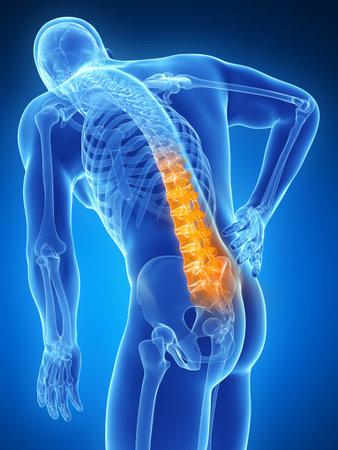 trauma: 3d rendered illustration - backache male