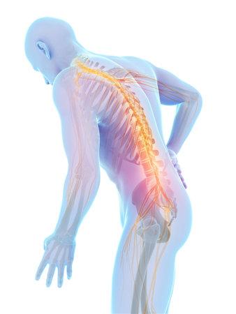 Illustrazione di rendering 3D - mal di schiena maschile
