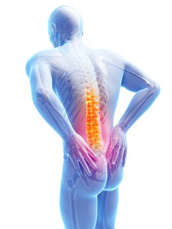 dolor de espalda: Ilustración 3d rendered - macho dolor de espalda